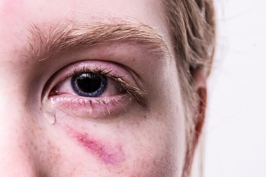 Trauma Injured Violent Tear